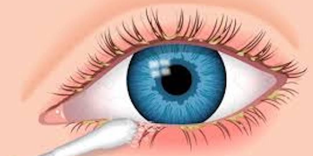 eyelash extension hygiene